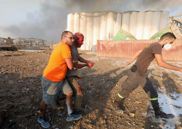 SENSITIVE MATERIAL. THIS IMAGE MAY OFFEND OR DISTURB. An injured man is helped following an explosion in Beirut