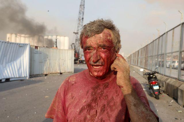 SENSITIVE MATERIAL. THIS IMAGE MAY OFFEND OR DISTURB An injured man is seen following an explosion in Beirut